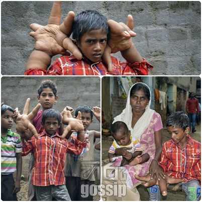 indian child who bears large hands